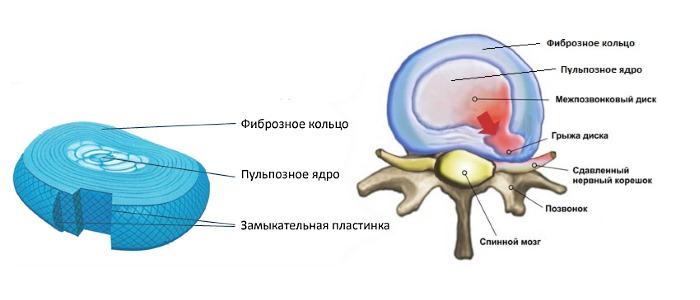 Межпозвоночная грыжа возникает, когда фиброзное кольцо не в состоянии удерживать пульпозное ядро, в следствии чего второе выпадает в позвоночный канал