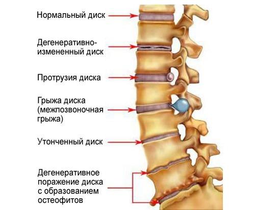 Очень часто масло пихты используют для лечения заболеваний спины, в частности остеохондроза