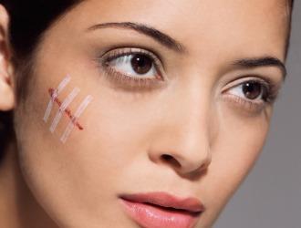 При повреждениях кожи запрещено использовать лекарственное средство