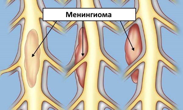 Менингиомы бывают доброкачественными и злокачественными