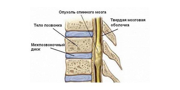 Менингиома позвоночника - опухоль из твердых спинномозговых оболочек