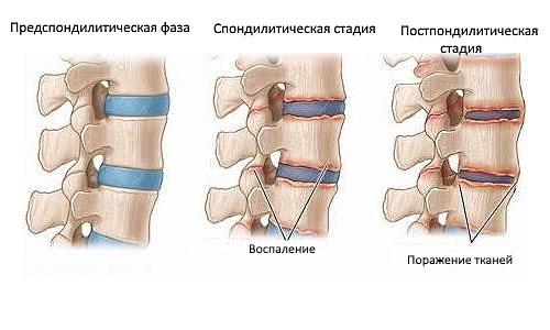Туберкулезный спондилит протекает в трех стадиях