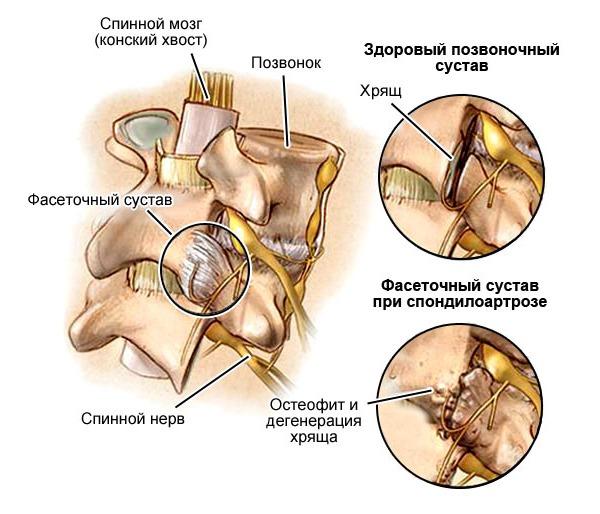 Спондилоартроз имеет выраженный болевой синдром при ходьбе