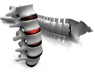 При дисците воспаление развивается непосредственно в межпозвонковых дисках