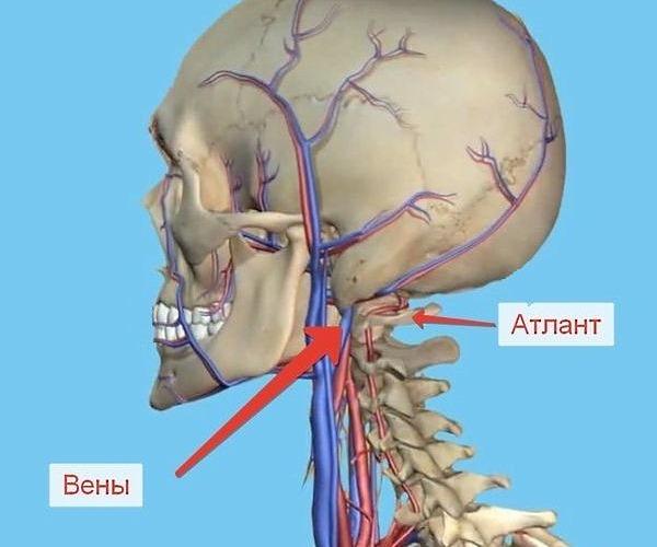 Опасность подвывиха Атланта в том, что происходит сдавливание позвоночной артерии