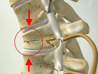 К причинам появления перелома позвоночника относятся травмы позвоночника