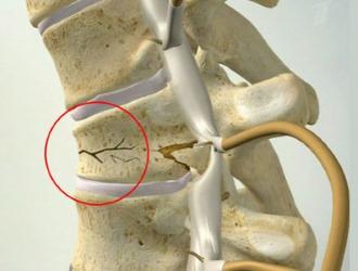 Компрессионный перелом грудного отдела позвоночника