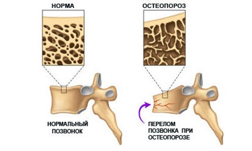 Медленно прогрессирующая компрессия позвонков является следствием остеопороза