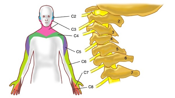 Болит спина шейный отдел thumbnail