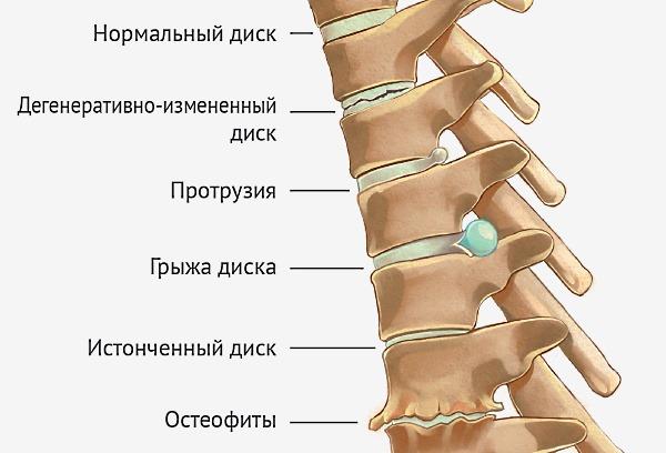 Болит спина если долго наклоняюсь thumbnail