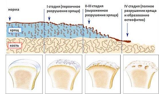 Боль при спондилоартрозе усиливается по мере его развития