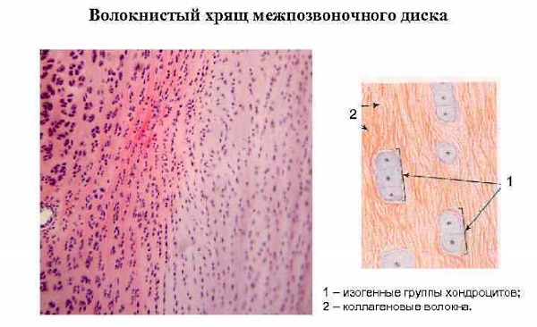Хондроитин способствует насыщению хрящевой ткани влагой