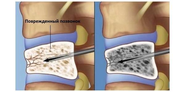 Компрессионный перелом позвоночника возникает из-за сильного давления на него