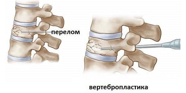 Вертебропластика делается для укрепления поврежденного позвонка с помощью специального цемента