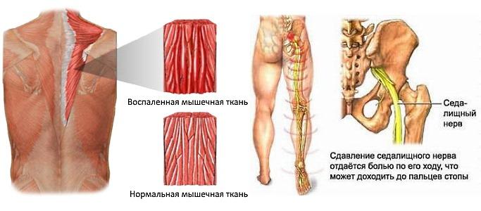 Мазь Аналгос назначают при различных мышечных болях и невралгиях