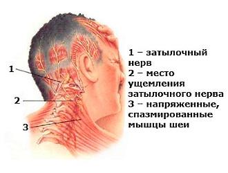 Обратите внимание на основные симптомы защемления нервов в шее