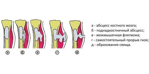 Остеомиелит - это гнойное поражение костной ткани