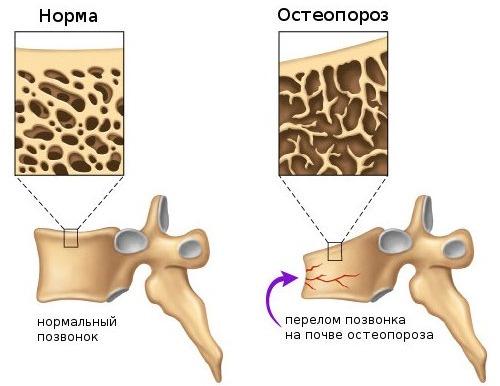Остеопороз способствует деформации позвонков, что также проявляется болью при движении