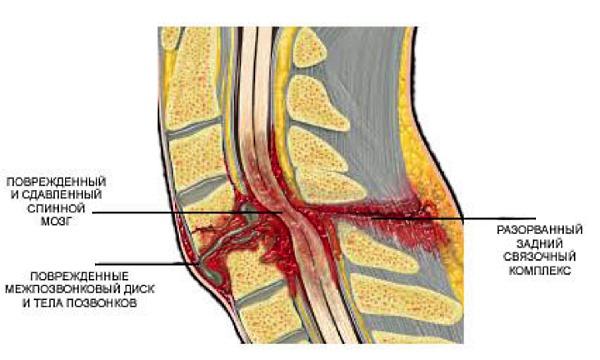 При ушибе позвоночника обычно повреждаются мягкие ткани