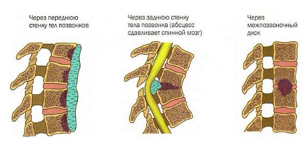 Возможные места поражения позвоночника инфекцией