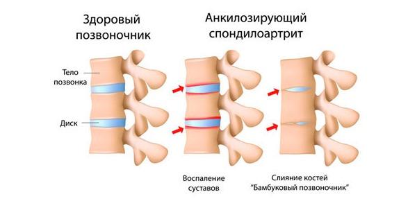Болезнь Бехтерева - асептическое воспаление позвоночника