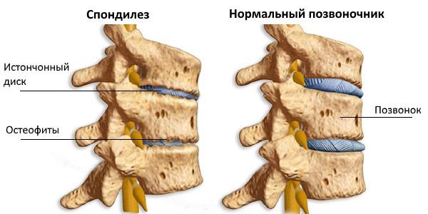 Умеренные и постоянные боли свидетельствуют о развитии остеохондроза и спондилеза