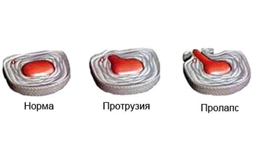 Боль в пояснице может возникнуть при развитии остеохондроза, который разрушает межпозвонковые диски