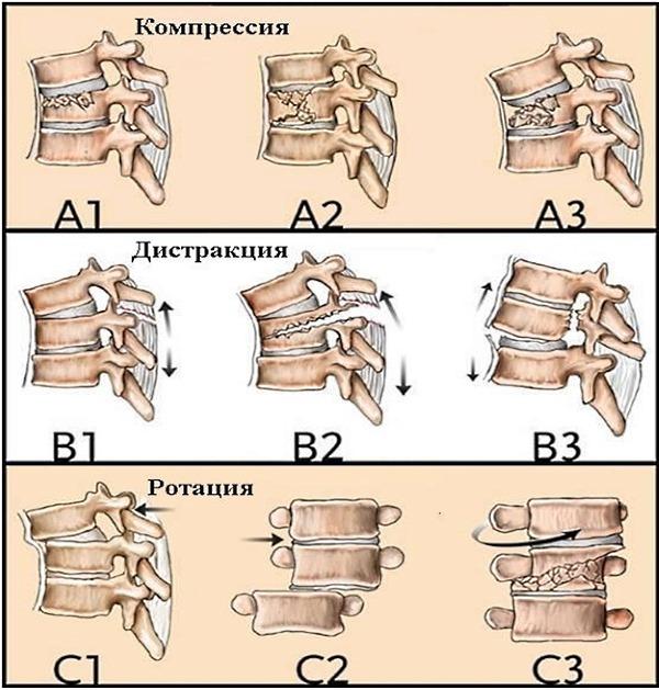 Обратите внимание на виды компрессионного перелома
