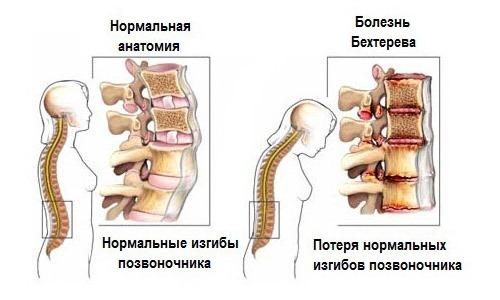 При Бехтеревой болезни боль локализуется в поясничном отделе