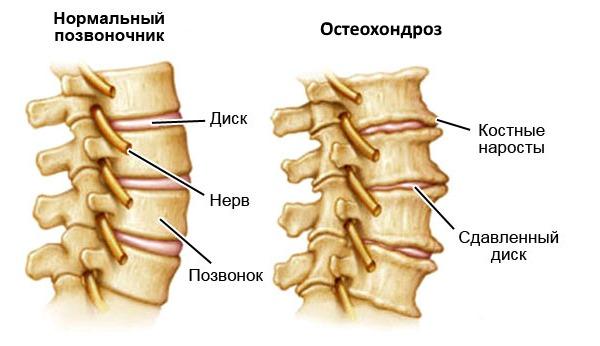При остеохондрозе также часто массаж включают в комплексное лечение