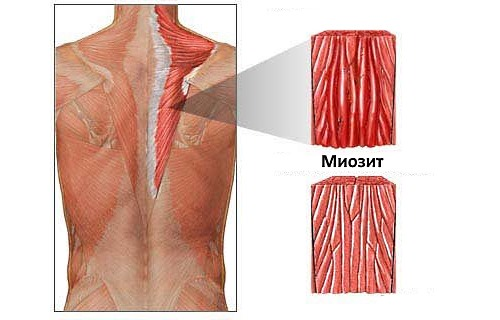 Часто острые и ноющие боли появляются при миозите мышц спины