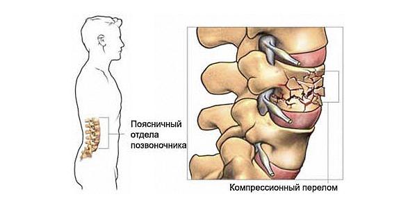 Тянущая боль в спине острого характера свидетельствует о травме позвоночника