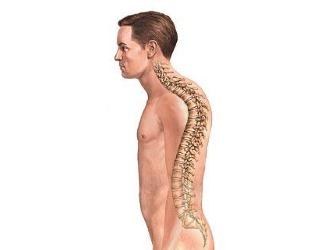 Причины и симптомы горба на спине