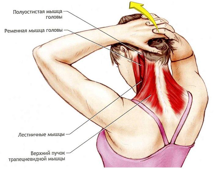Лечебная гимнастика помогает укрепить мышцы шеи, что в дальнейшем снимает нагрузку с позвоночника
