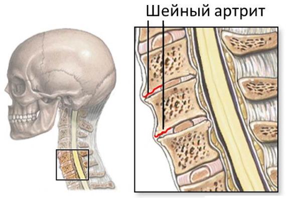 При артритах можно воспользоваться мазью с индометацином