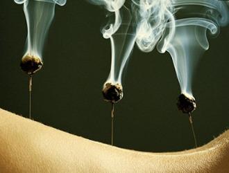 Сегодня существует большое количество методов иглотерапии с применением различных веществ и электрического тока