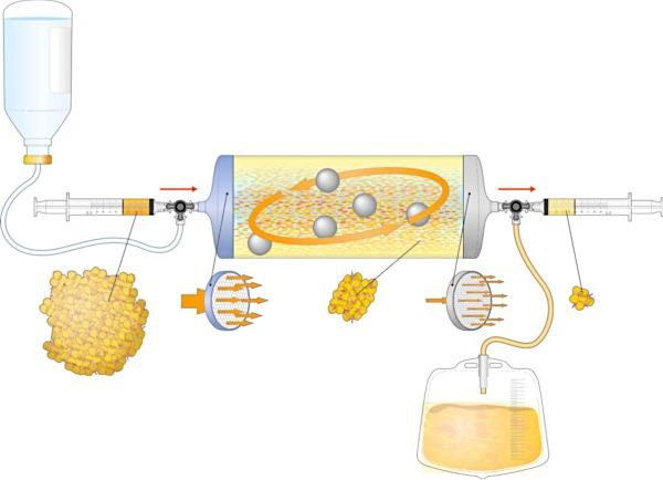 Инъекции жира в коленный сустав thumbnail
