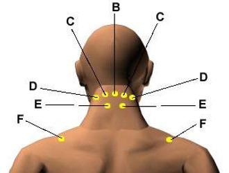 Эффективным при грыжах шейного отдела позвоночника может стать точечный массаж Шиатсу