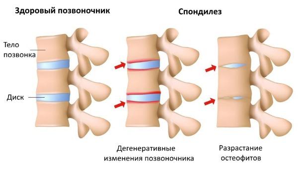 Спондилез возникает при дегенеративных изменениях позвоночника