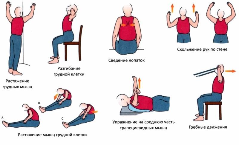 Гимнастика для грыж в грудном отделе thumbnail