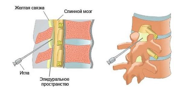 Чаще всего при грыже позвоночника выполняют уколы с новокаином