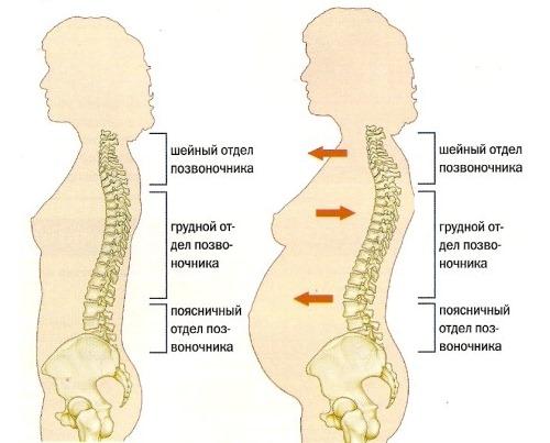 Женщины при беременности часто сталкиваются с поясничными болями