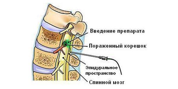 При грудном остеохондрозе блокады применяют гораздо реже, чем при других видах заболевания
