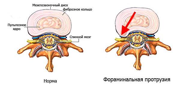 Фораминальная грыжа характеризуется выпячиванием диска в направлении нервных корешков