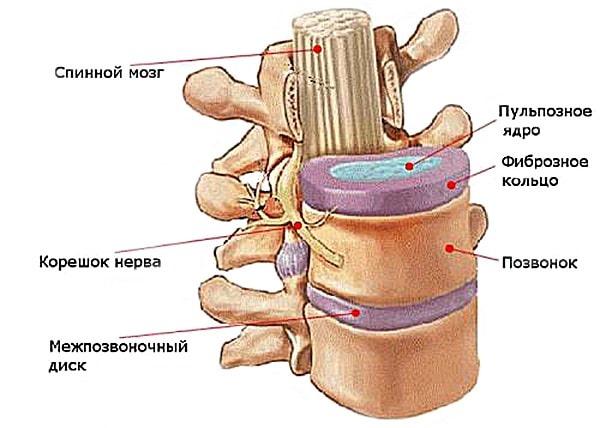Больше всего при остеохондрозе страдает межпозвоночный диск, в связи с чем после разрыва фиброзного кольца развивается грыжа