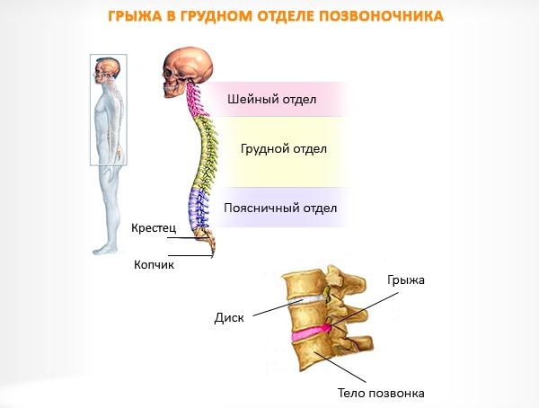 Очень часто грыжа грудного отдела протекает бессимптомно ввиду того, что данная часть позвоночника малоподвижна