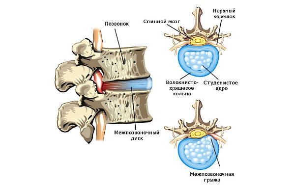 Опоясывающая боль в пояснице часто возникает при остеохондрозе и его осложнениях