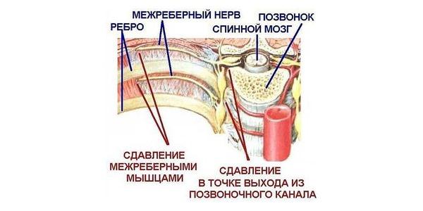Противовоспалительные мази можно использовать при различных типах невралгии