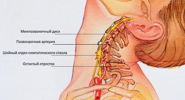Грыжа шейного отдела опасна тем, что пережимается позвоночная артерия
