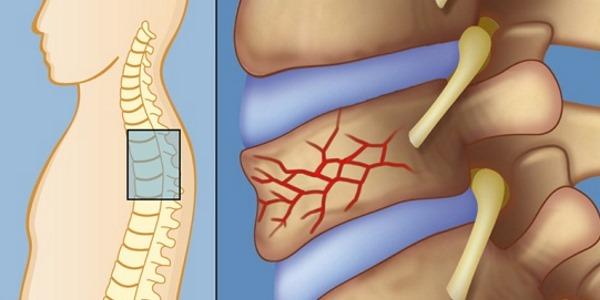 Чаще всего при ушибах спины страдает позвоночник